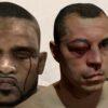 ESBC and Fight Night facial damage